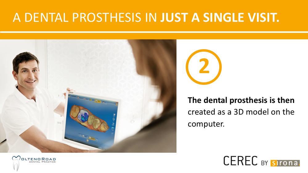 Cape-Town-Dental-CEREC-One-Day-Dentistry-06