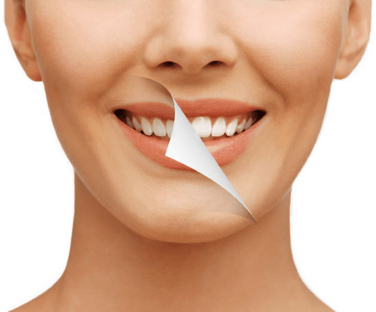 Cape-Town-Dentist-Teeth-Whitening