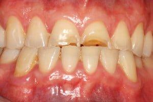 Molteno-Road-Dental-Practice-Before-Anterior-Adhesive-Bonding