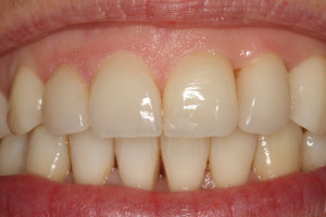 Molteno-Road-Dental-Practice-After-Anterior-Ceramic-Crowns