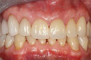 Molteno-Road-Dental-Practice-After-CEREC-Ceramic-Crowns
