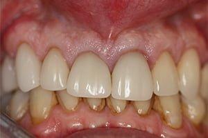 Molteno-Road-Dental-Practice-Before-CEREC-Ceramic-Crowns