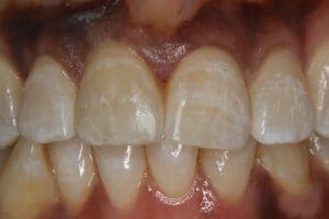 Composite Bonding Dental Treatment