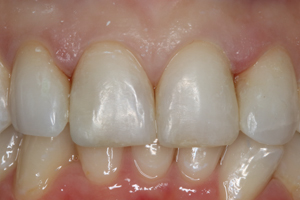 Molteno-Road-Dental-Practice-After-Composite-Bonding