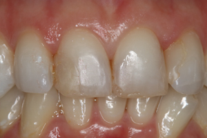 Molteno-Road-Dental-Practice-Before-Composite-Bonding