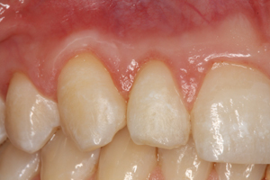 Molteno-Road-Dental-Practice-After-Cosmetic-Augmentation