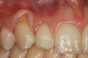 Molteno-Road-Dental-Practice-Before-Cosmetic-Augmentation