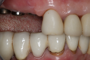 Dental Rehab Case