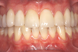 Molteno-Road-Dental-Practice-After-Dental-Veneers-04
