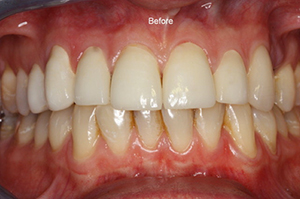 Molteno-Road-Dental-Practice-Before-Dental-Veneers-04