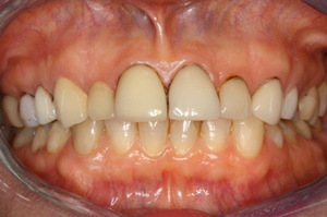 Molteno-Road-Dental-Practice-Before-Dental-Veneers-05