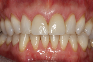 Molteno-Road-Dental-Practice-After-Dental-Veneers-03