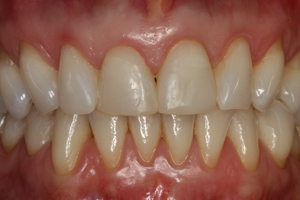 Molteno-Road-Dental-Practice-Before-Dental-Veneers-03