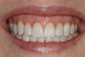 Molteno-Road-Dental-Practice-After-Dental-Veneers-01