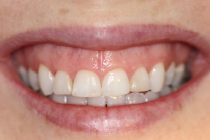 Molteno-Road-Dental-Practice-Before-Dental-Veneers-01