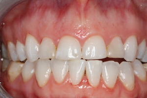 Molteno-Road-Dental-Practice-Before-Dental-Veneers