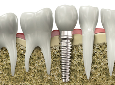 Molteno-Road-Dental-Practice-Dental-Implants
