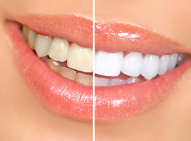 Molteno-Road-Dental-Practice-Teeth-Whitening