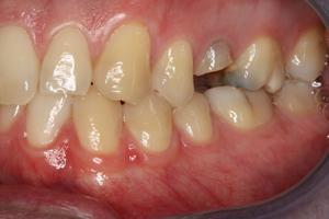 Molteno-Road-Dental-Practice-Before-Molar-Dental-Implant-01