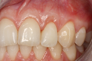 Molteno-Road-Dental-Practice-After-Resession-Cosmetic-Augmentation
