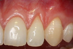 Molteno-Road-Dental-Practice-Before-Resession-Cosmetic-Augmentation