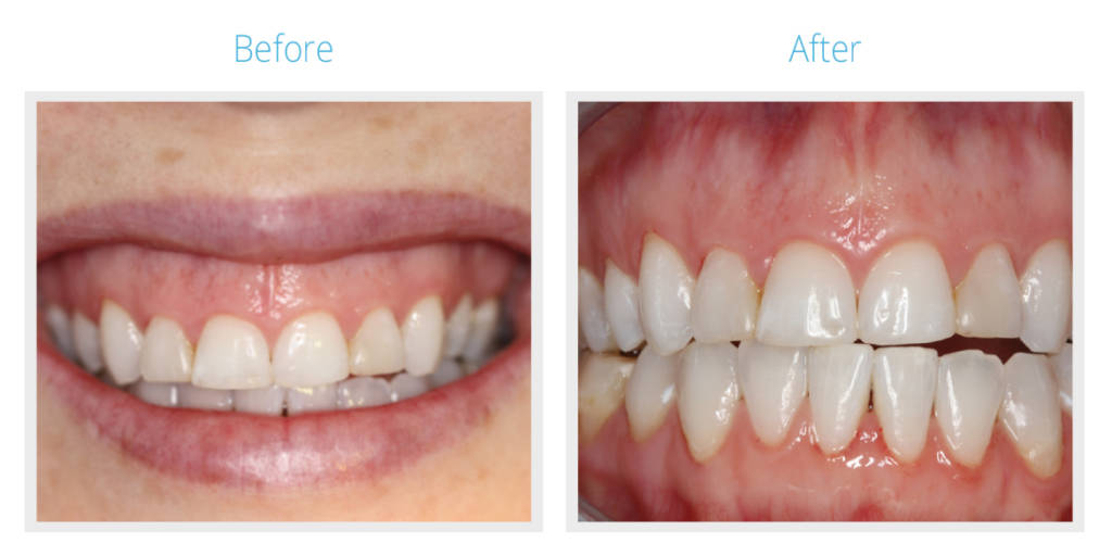 Before & After Ceramic Veneers Bonding