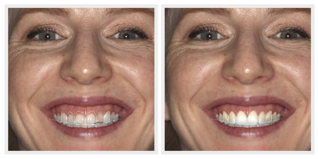 Before & After Aesthetic Crown Lengthening Procedure