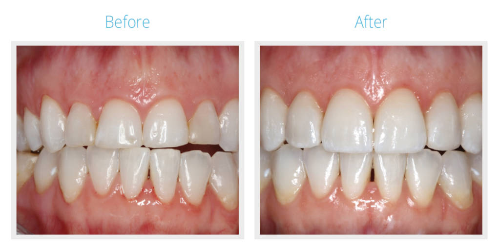 Before & After Maxillofacial Surgeon Treatment